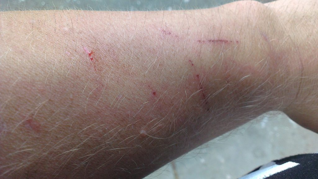 Arms scratched from blackberry vines